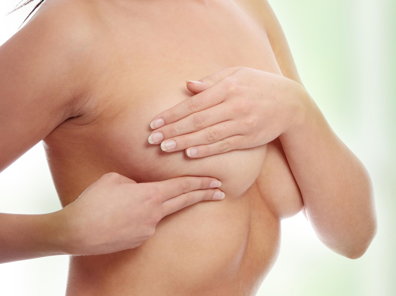Radiothérapie pour le cancer du sein - Société